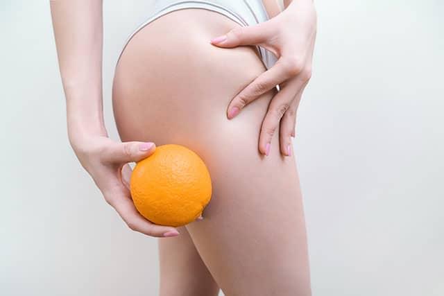 ผิวส้ม